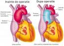 Operatie anevrism de aortă