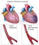 Inima - infarctul cardiac