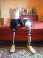 Ce trebuie să știi înainte de prima proteză de picior sau braț - Theranova