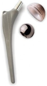 Proteza de Şold (Artroplastia Totală de Şold) | Ortopedia pe Înţelesul Tuturor