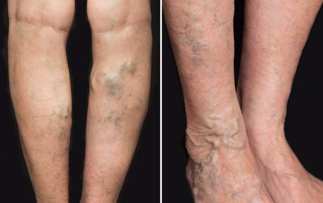 Varice - cauze, simptome si tratament