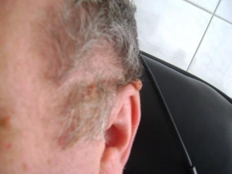 Papilom la ureche cum se tratează, Otita - cauze, tipuri, simptome si tratament | MedLife