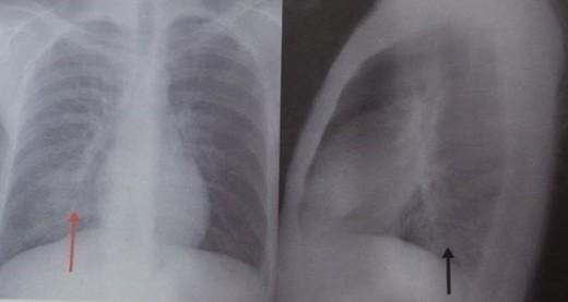 Pneumonie a lobului inferior drept