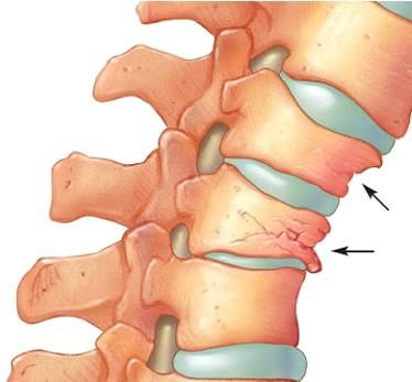 Tasare vertebrala