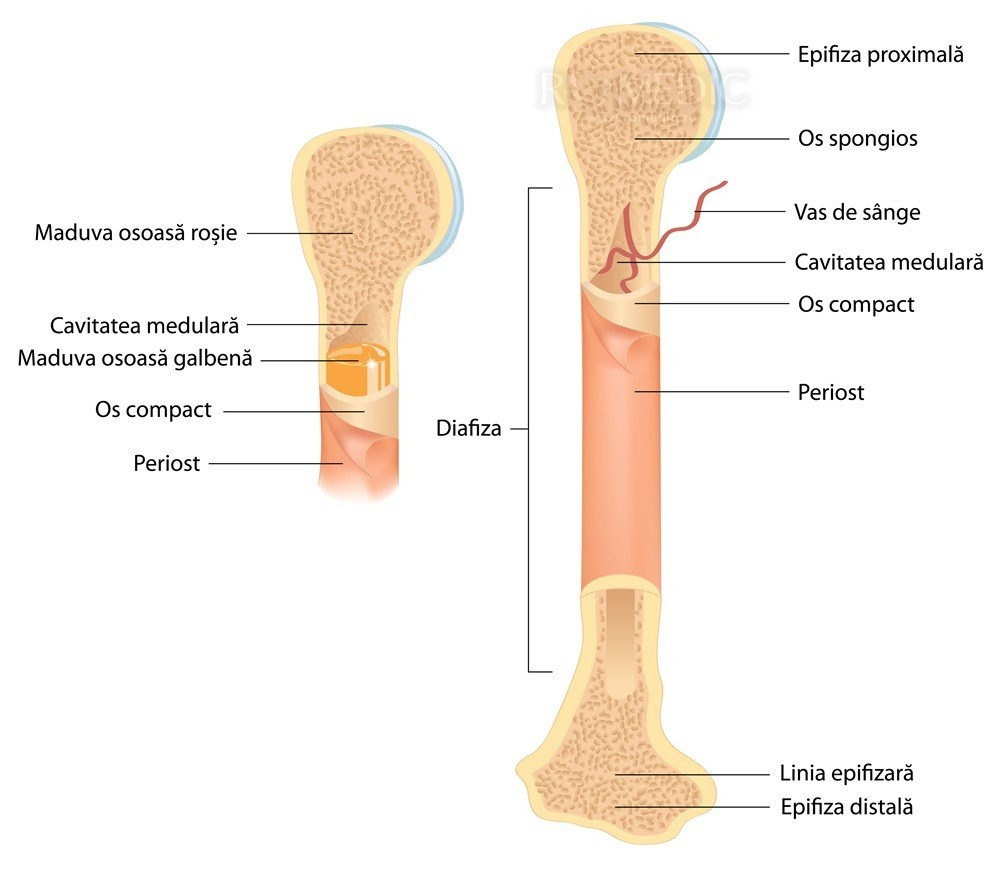 Tratamentul Tskhaltubo al artrozei