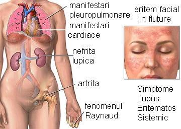 lupus eritematos sistemic forum