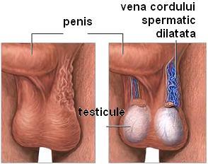 Sex fara testicule | Forumul Medical ROmedic