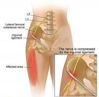 Ce unguent sa utilizeze pentru dureri de spate mai mici