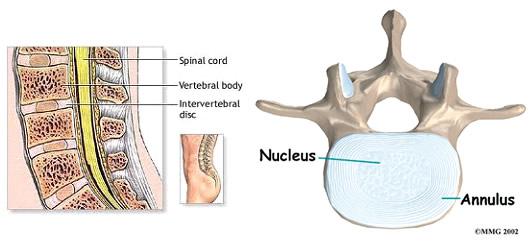 Procedura de repoziționare a vertebrelor atunci când sunt deplasate