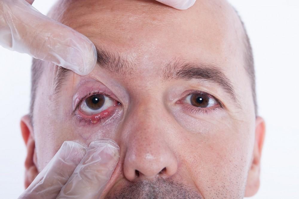 Tulburări de vedere cu sifilis Video CSID