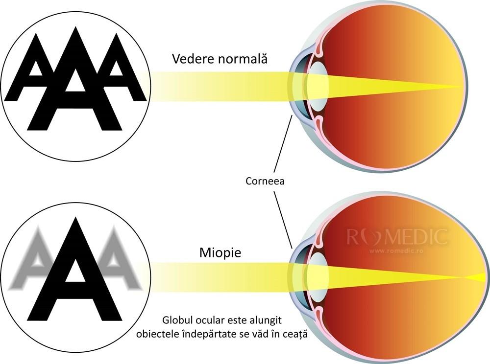 îmbunătăți vederea în miopia mare)