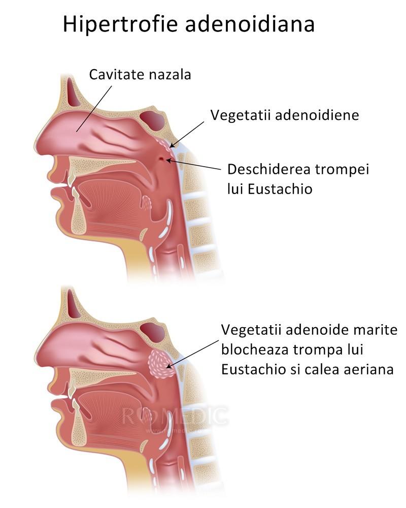 inflamația nazofaringelui și a articulațiilor