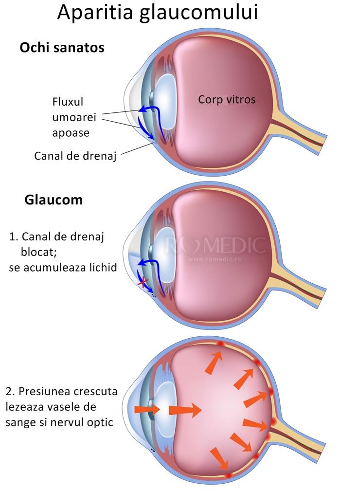 cum să salvați vederea de la glaucom