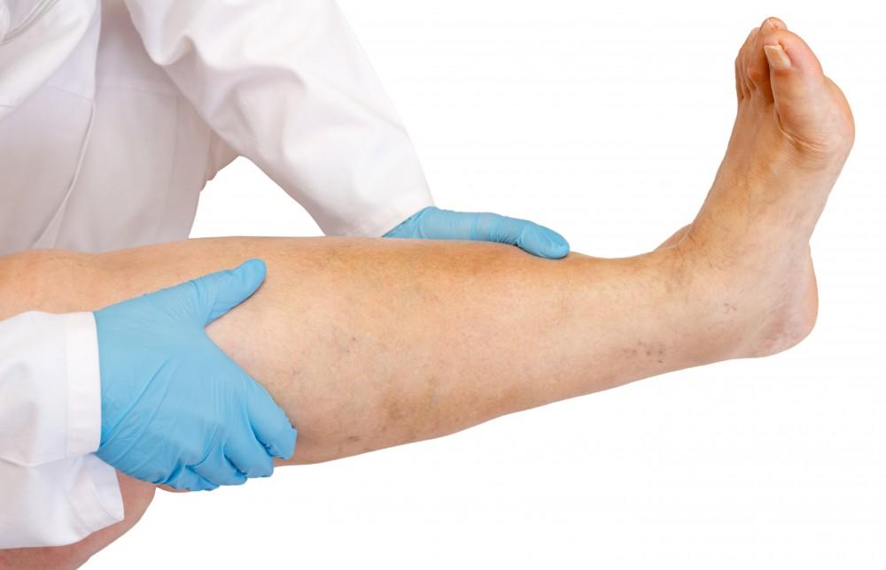 cauzele edemului la picioare și glezne