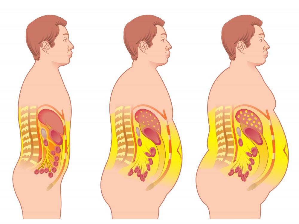 sindromul metabolic incapacitatea de a pierde în greutate