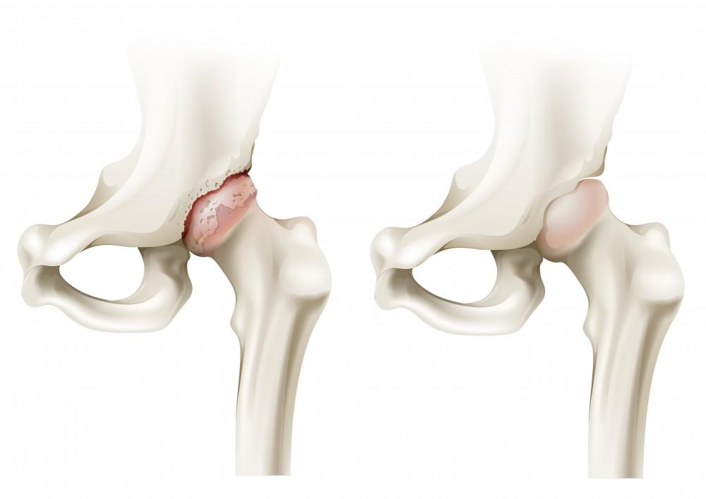 cel mai bun leac pentru artroza articulației șoldului