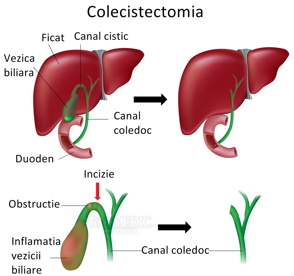 colecistita cronica tratament