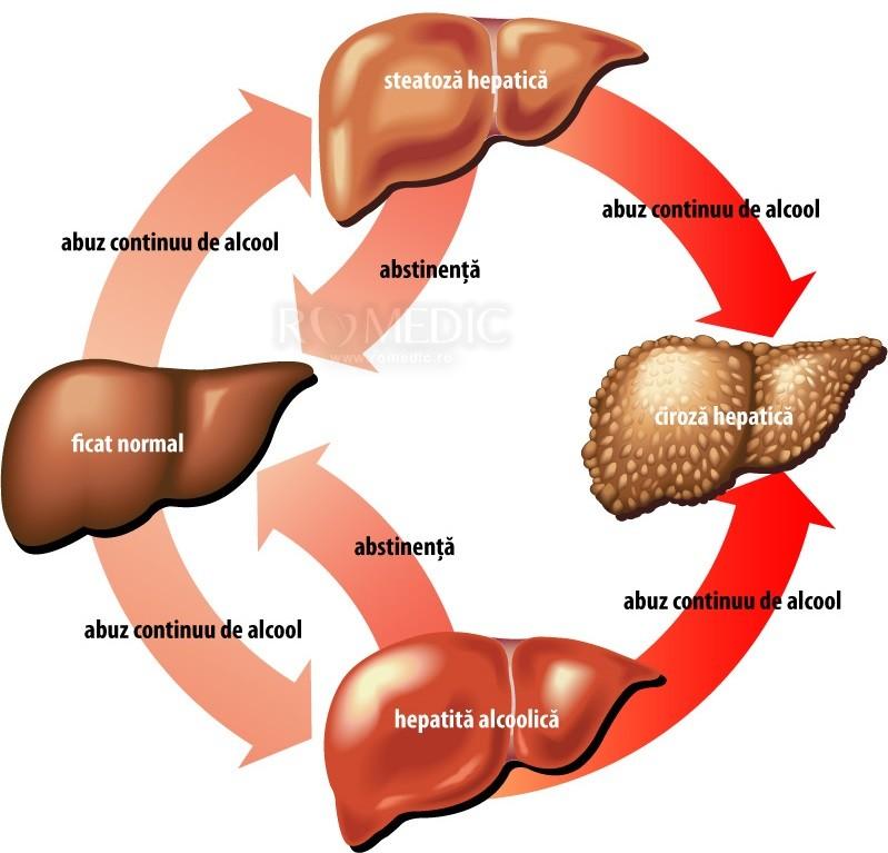 hepatita simptome