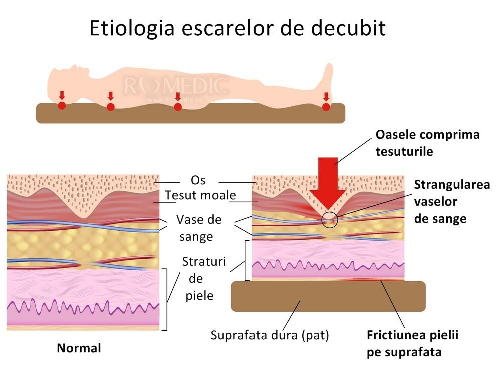 poziția ulcerului decubit glezne umflate nu retenție de apă
