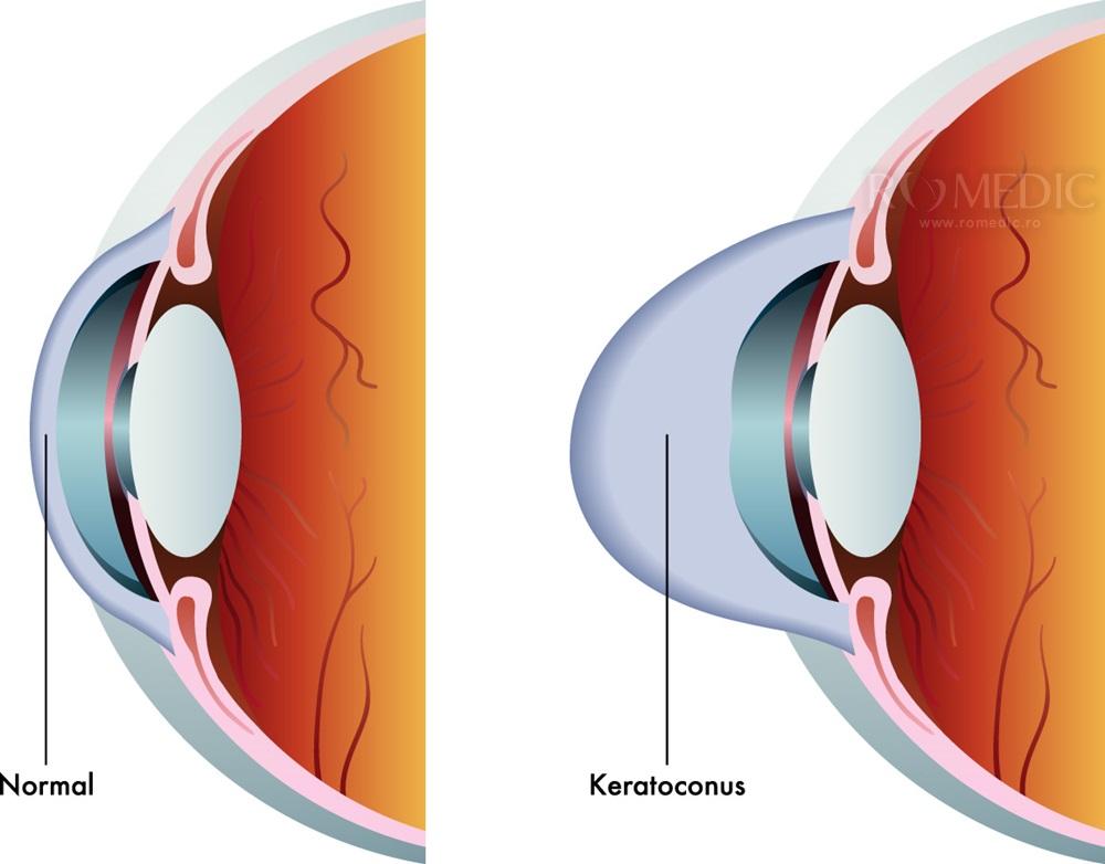 Keratoconusul: ce probleme de vedere provoaca si cum se trateaza