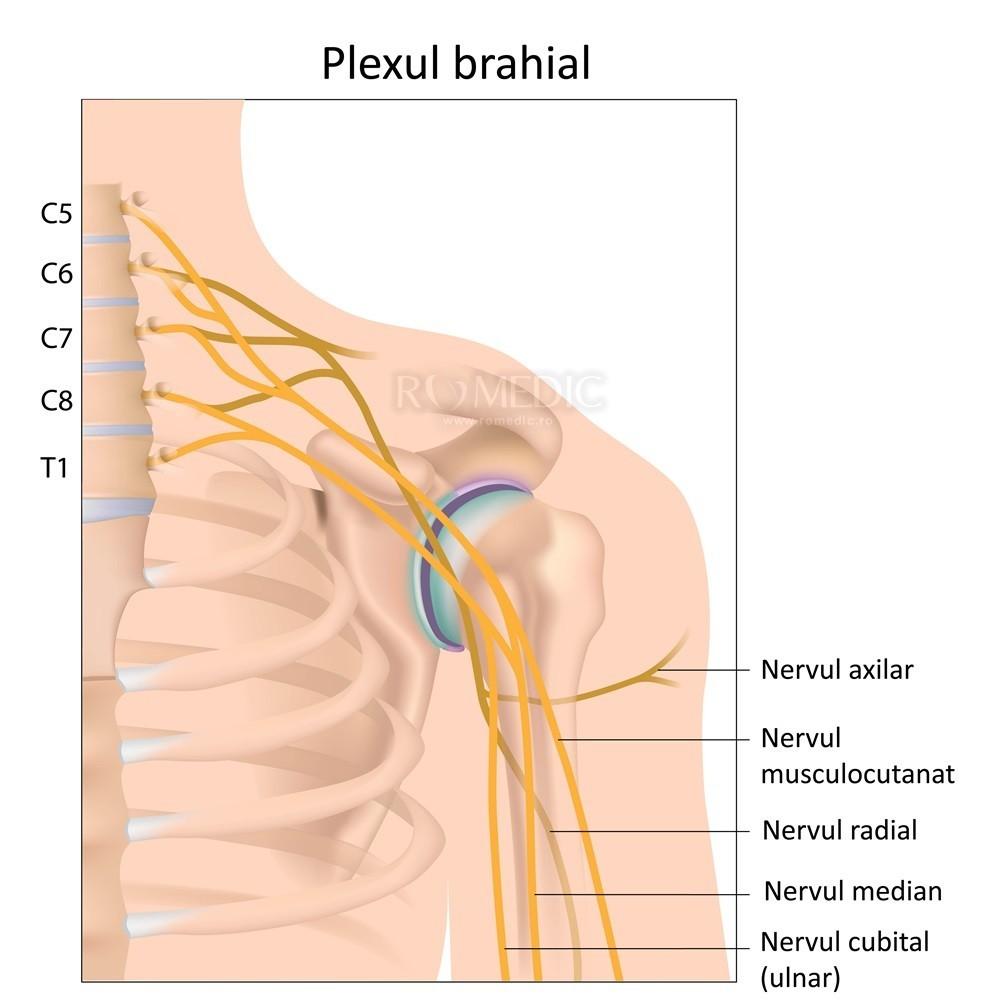 tratament pentru neurita articulației umărului