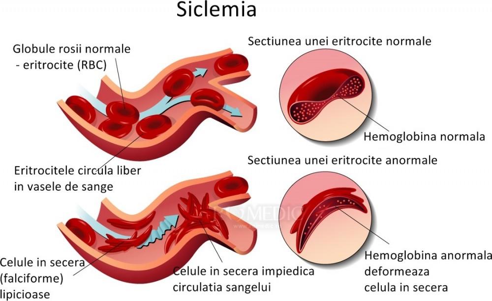 pierderea în greutate a celulelor secera eliminați grăsimea internă