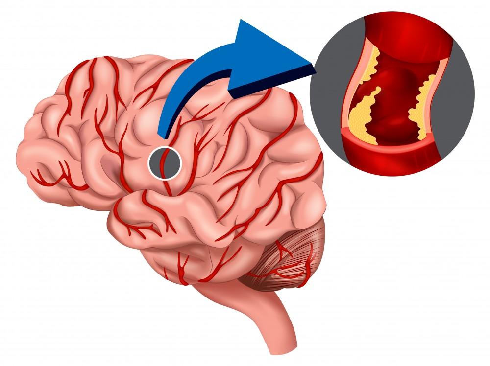 boală articulară după un accident vascular cerebral ce pastile să bea în tratamentul artrozei