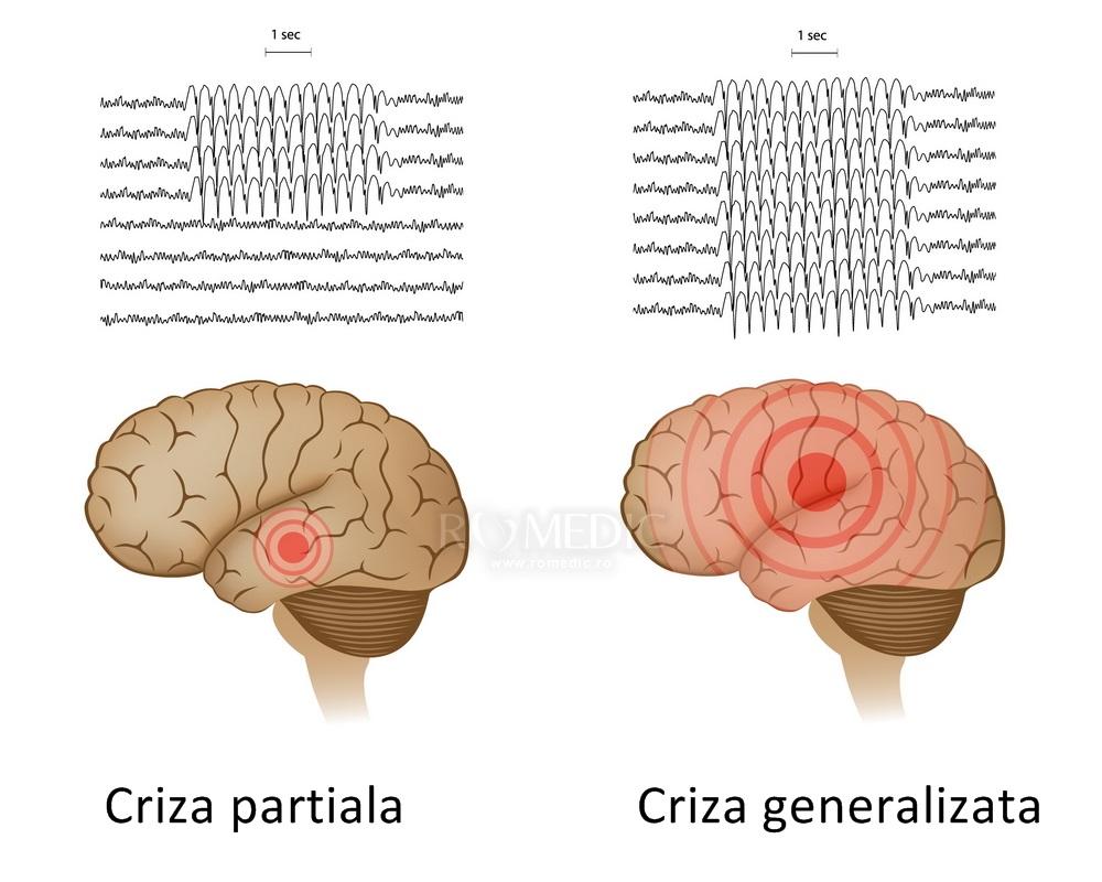 Descriere generala a epilepsiei