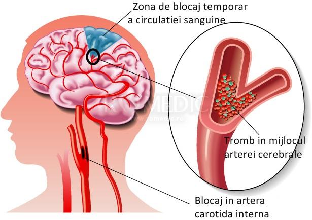 pierdere gravă în greutate după accident vascular cerebral)