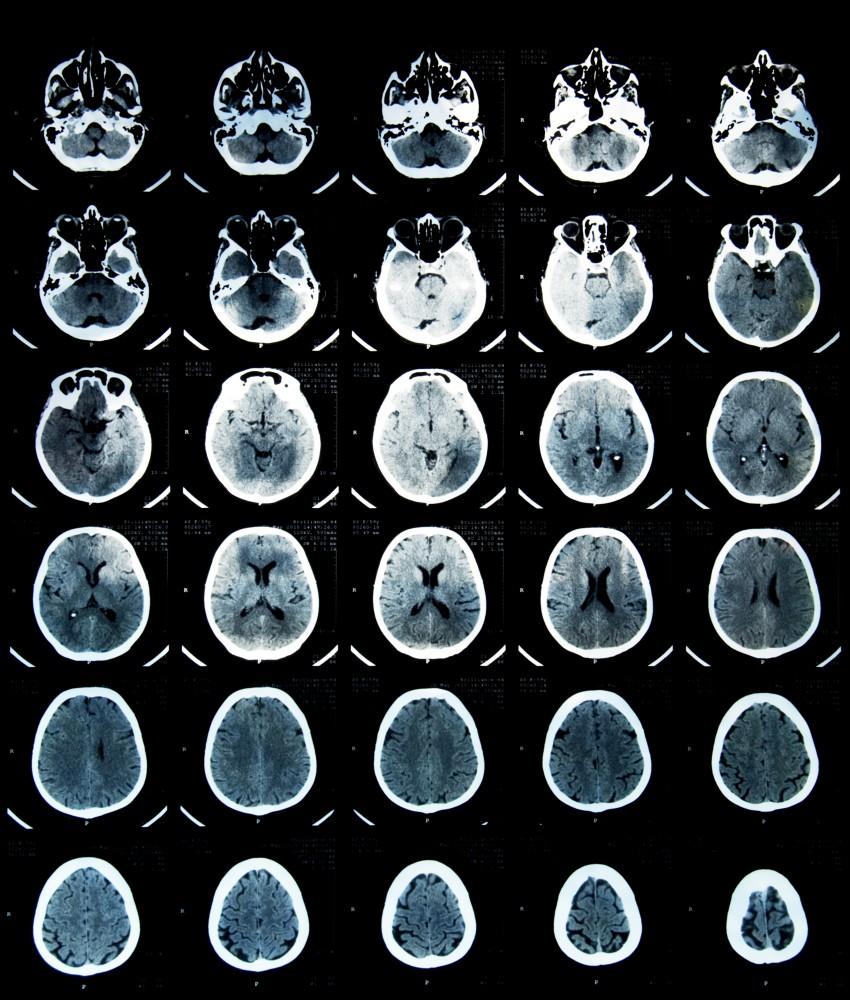 comotie cerebrală și viziune