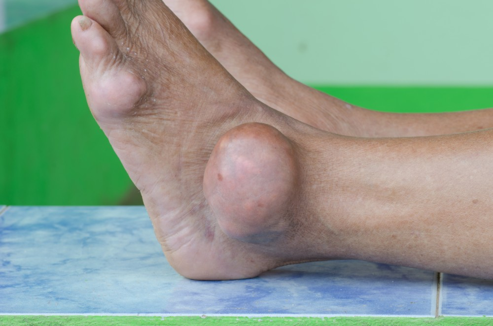 tratamentul artritei cu gută