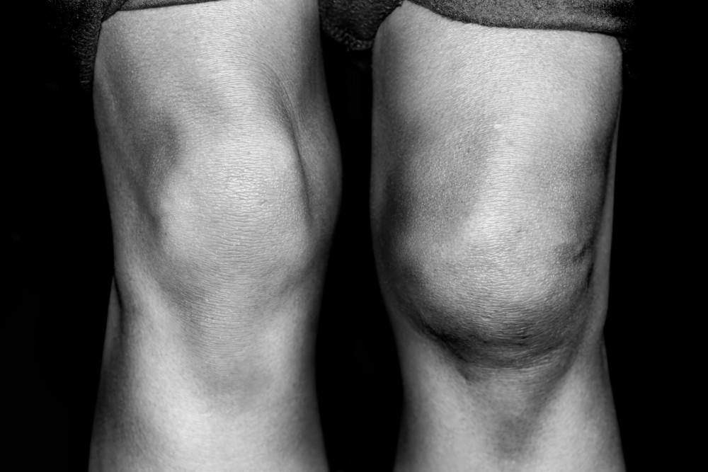inflamație articulară pe medicația piciorului