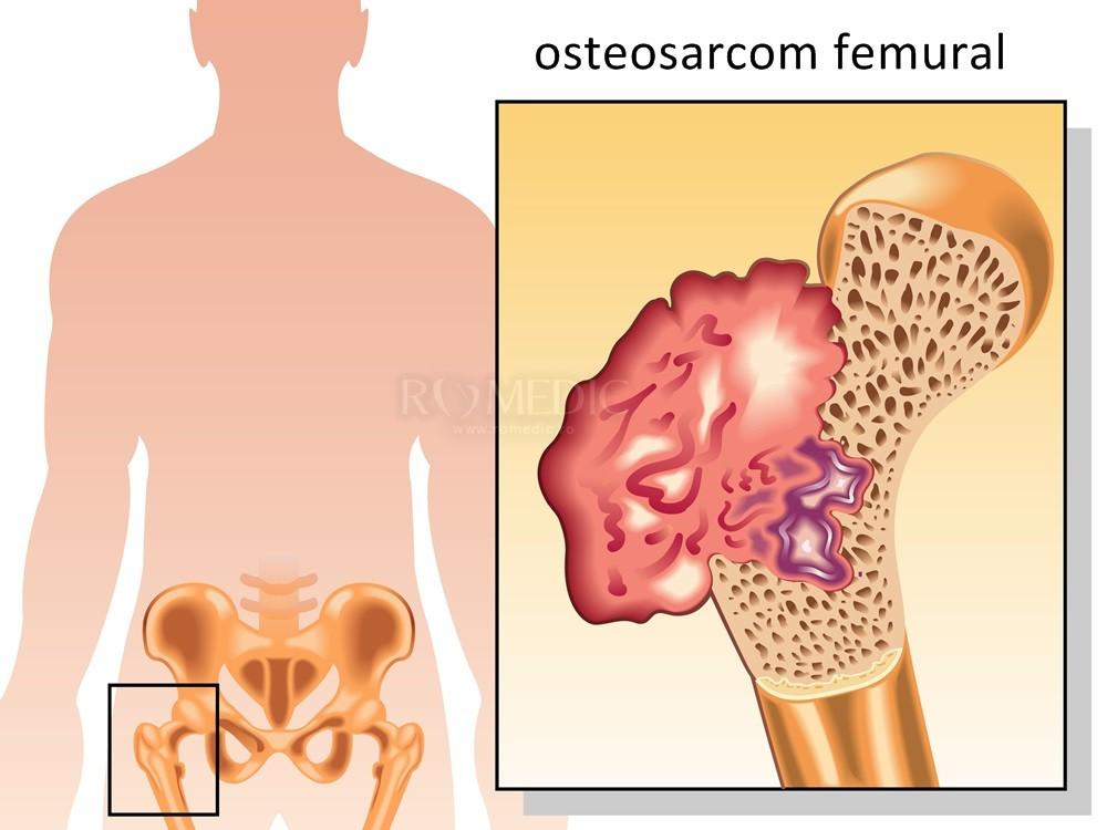 cancer metastaza osoasa)