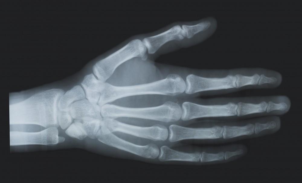 antecedente medicale cu fractură de încheietura mâinii regenerarea cartilajului a genunchiului