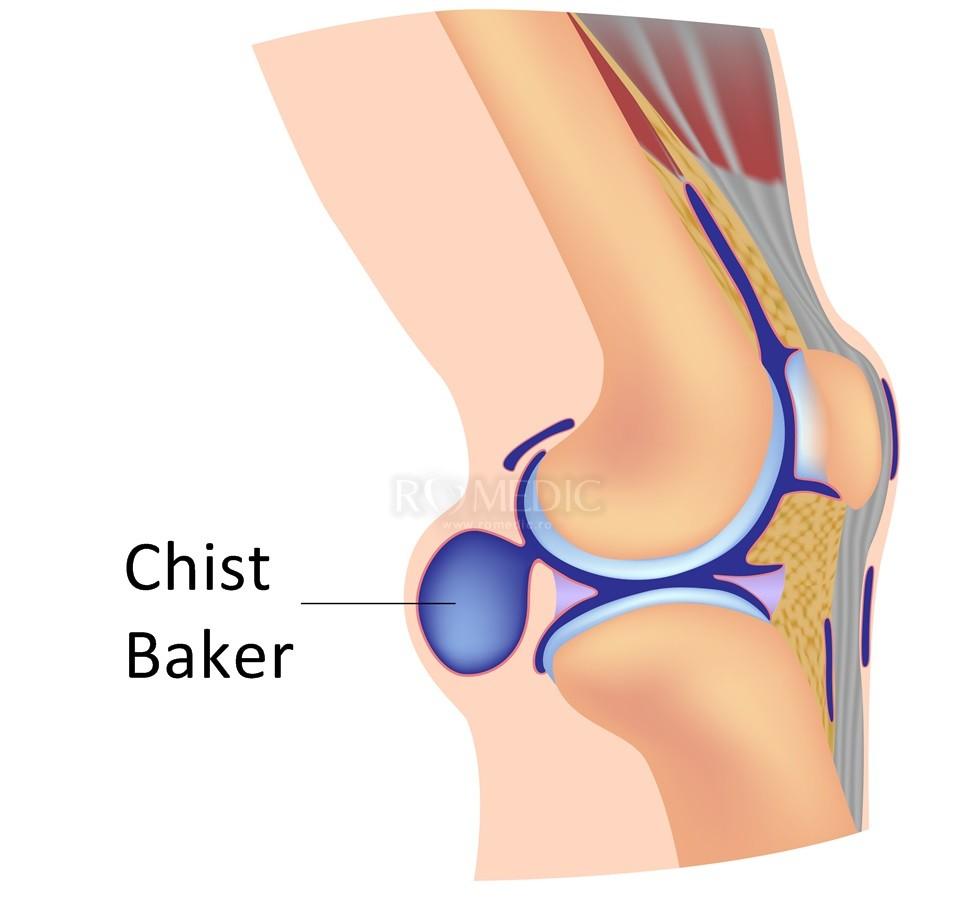 tratamentul cu strat de sare al articulațiilor genunchiului