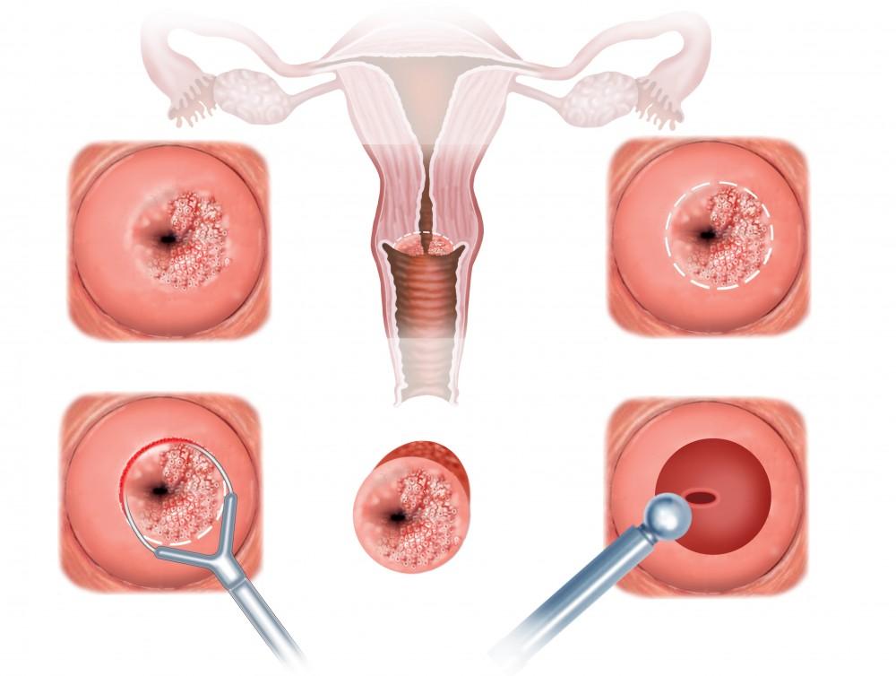 cancerul organelor genitale la femei papilloma on tongue tip