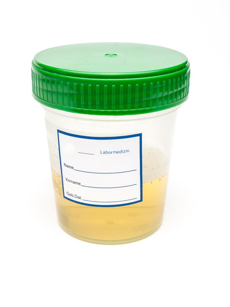 Hematuria (sânge în urină): cauze, investigații și diagnostic – boldcharts.ro
