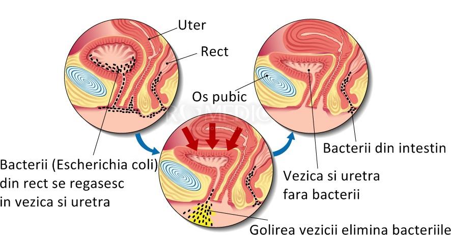 Infectii urinare joase - uretrita si cistita - Edumedical