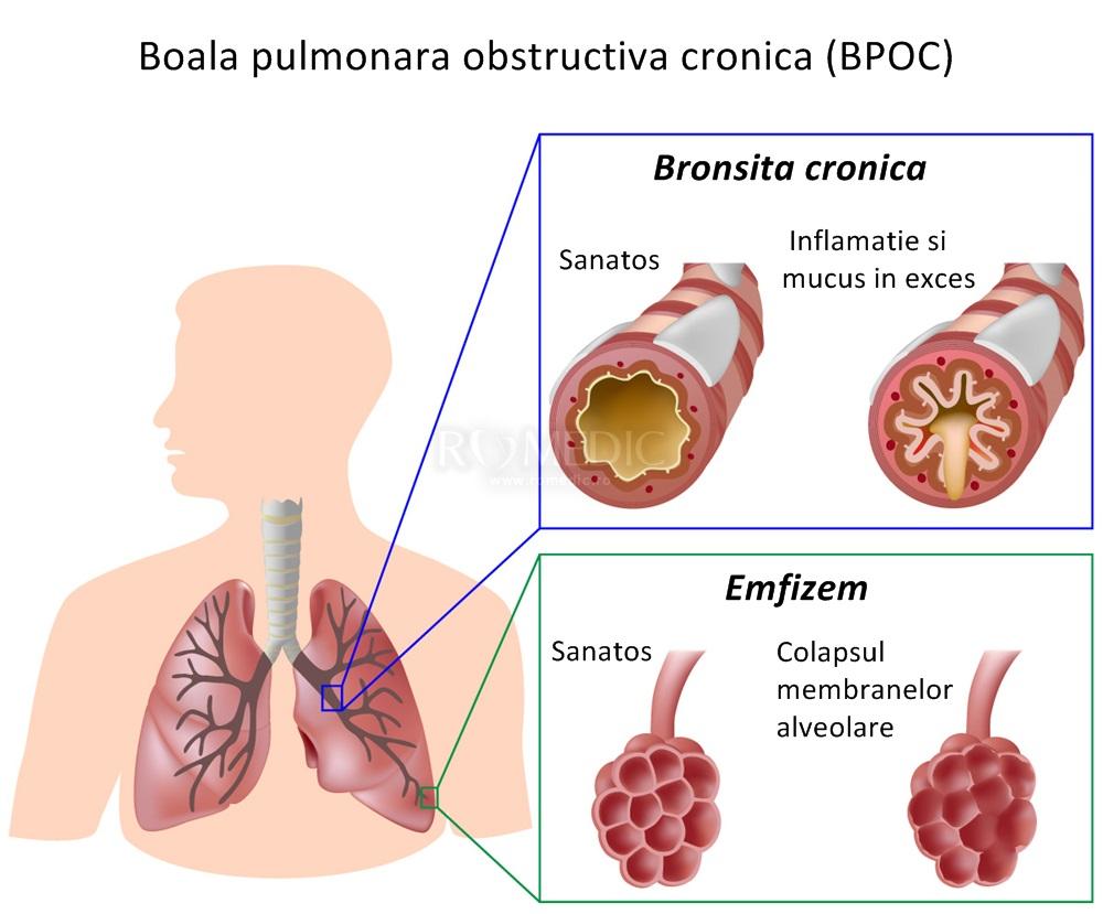 Хронический бронхит как лечить медикаментозное