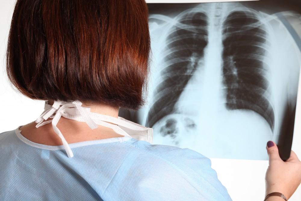 leziuni pulmonare în boli de țesut conjunctiv difuz