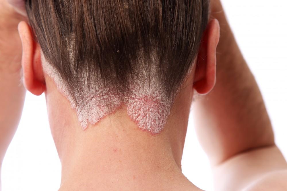 dermatita seboreica scalp poze haioase cu pisici