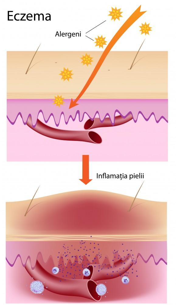 artrita reumatoida poze amuzante cu iuliana