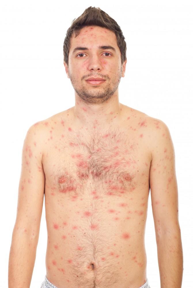 eczema alergica de contact tratament