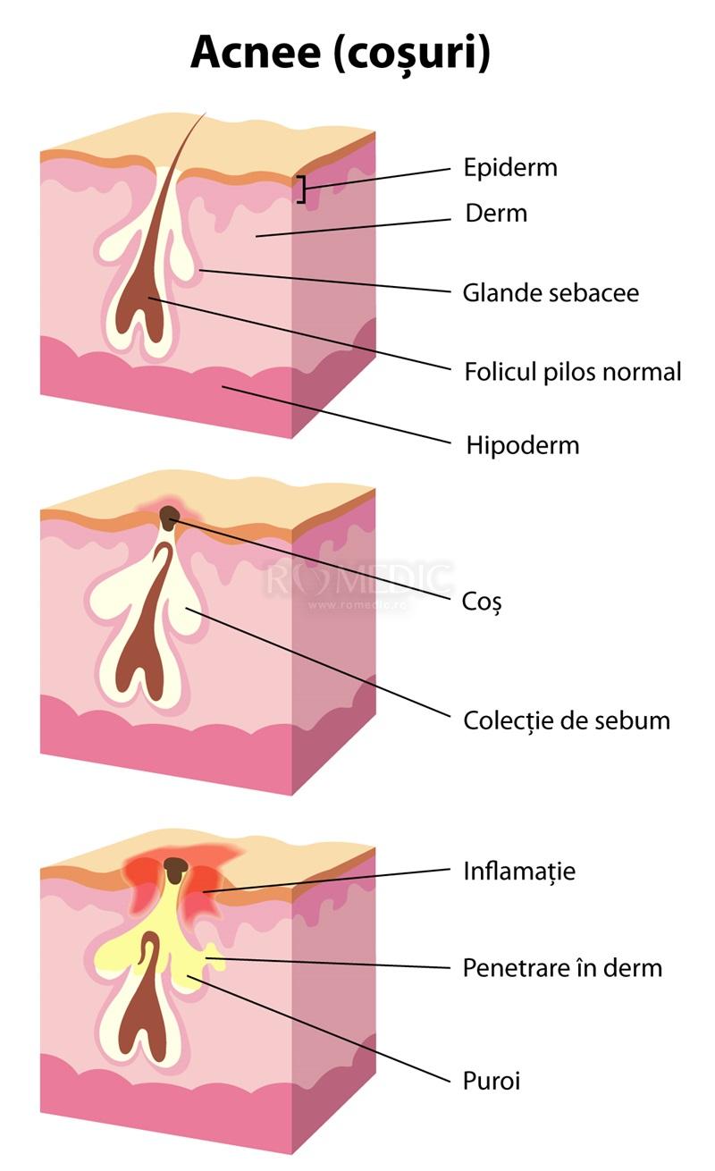 pastile pentru acnee