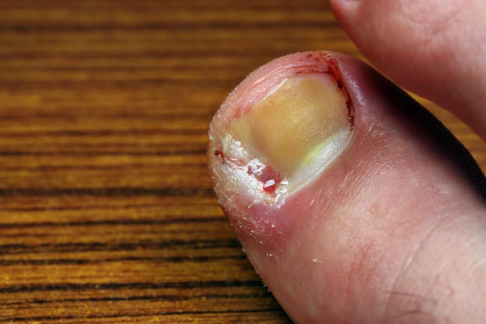 seboreica dermatita acuta in