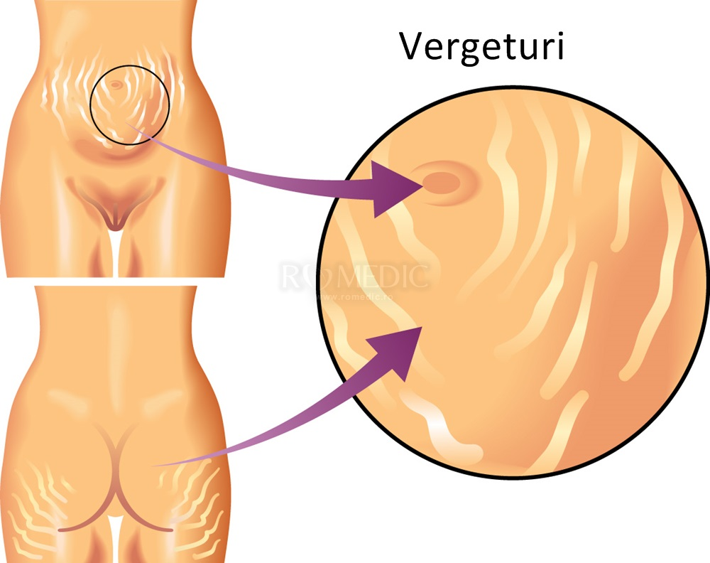 pierderea în greutate după vergeturile)
