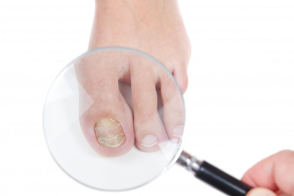dermatita psoriazica
