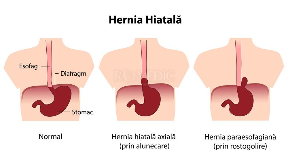 Hernia hiatala – cauze, simptome, tratament