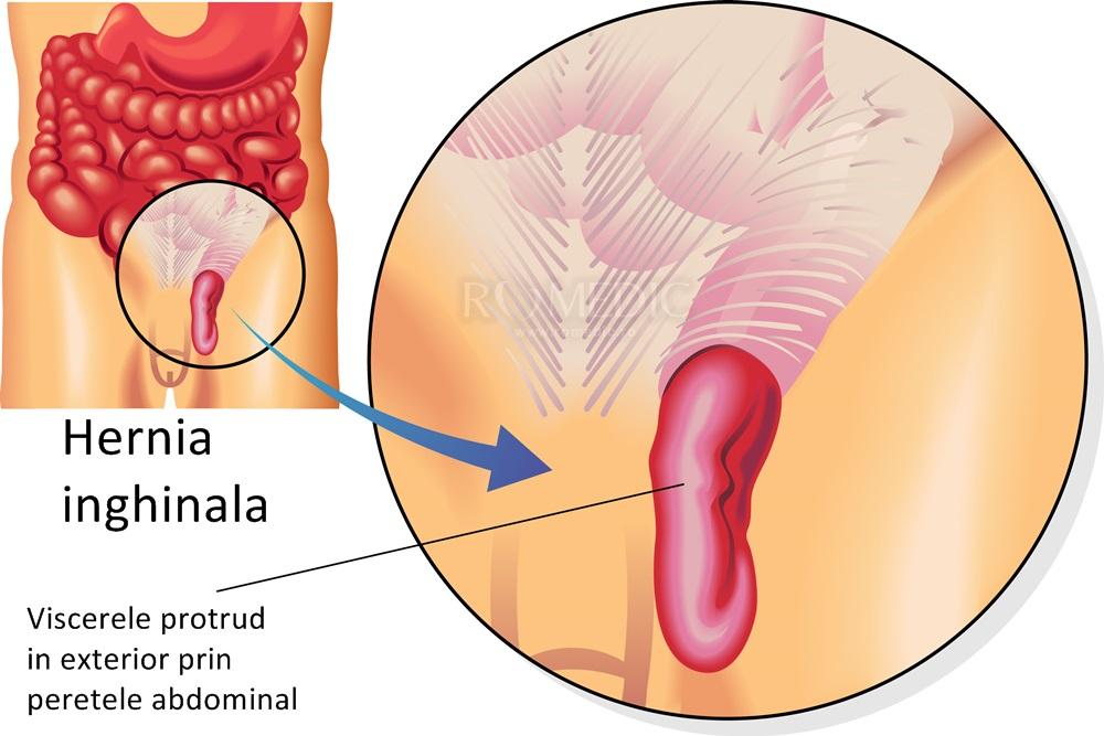 recuperare dupa operatie de hernie inghinala | Forumul Move&Flex