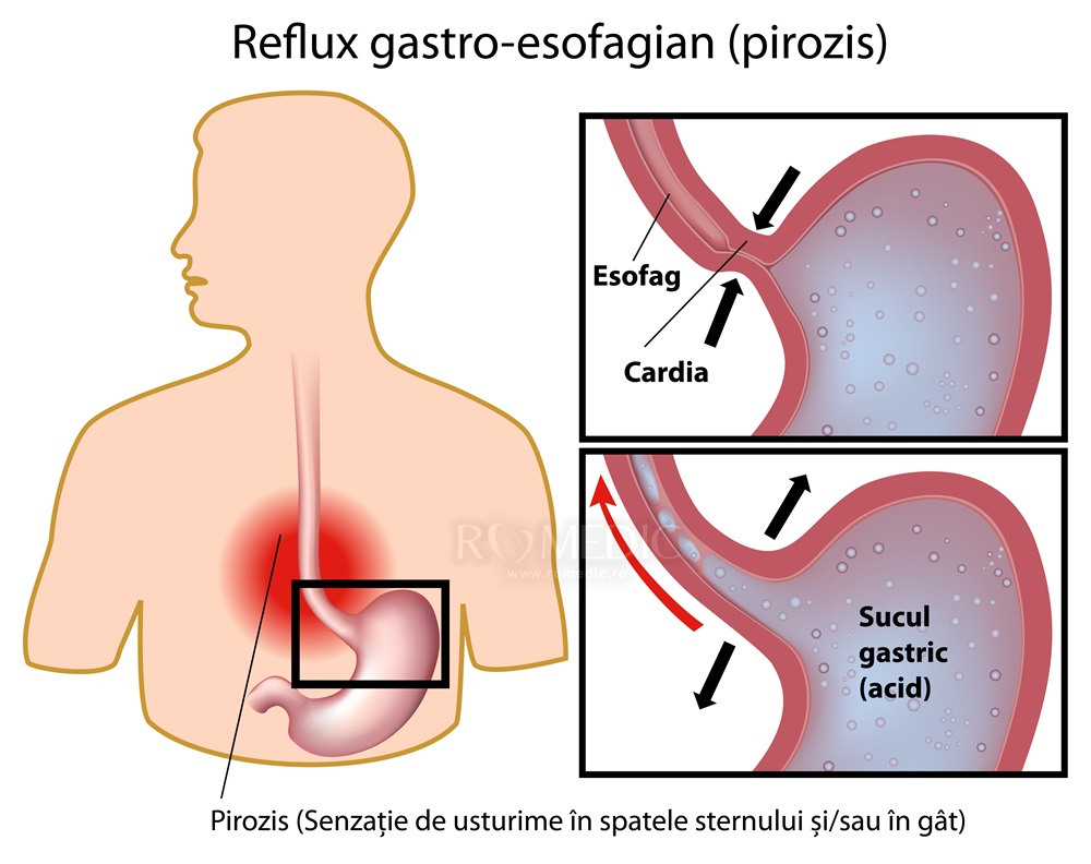 inel gastric vanzare